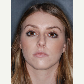 18-24 year old woman treated with Rhinoplasty 1 year post-op before 3499759