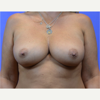 35-44 year old woman treated with Breast Augmentation before 3579916