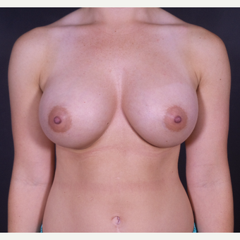 25-34 year old woman treated with Breast Augmentation after 3029186