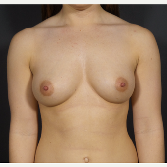 25-34 year old woman treated with Breast Augmentation before 3029186