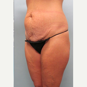 45 year old woman treated with Tummy Tuck before 3680096
