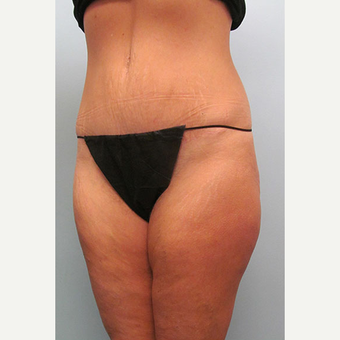 45 year old woman treated with Tummy Tuck after 3680096