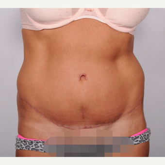 No Drain Tummy Tuck after 2693205