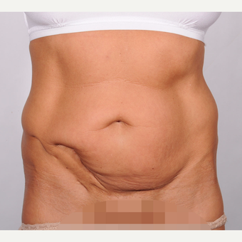 No Drain Tummy Tuck before 2693205