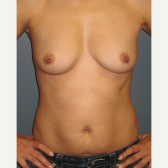 35-44 year old woman treated with Breast Augmentation before 3523627