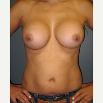 35-44 year old woman treated with Breast Augmentation after 3523627