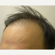 36 year old man treated with Hair Loss Treatment before 3815461