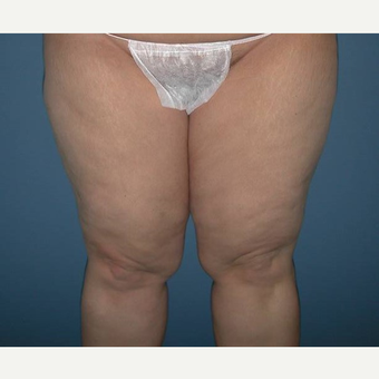 35-44 year old woman treated with Thigh Lift before 2979283