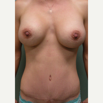 35-44 year old woman treated with Mommy Makeover after 2730304