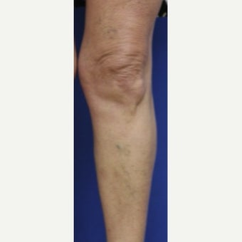 55-64 year old woman treated with Sclerotherapy before 2036995