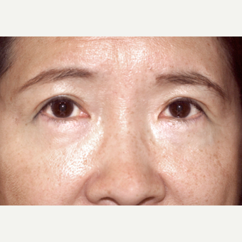 45-54 year old woman complains of lower eyelid bags after 2962983