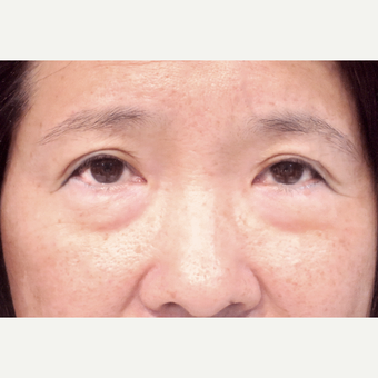 45-54 year old woman complains of lower eyelid bags before 2962983