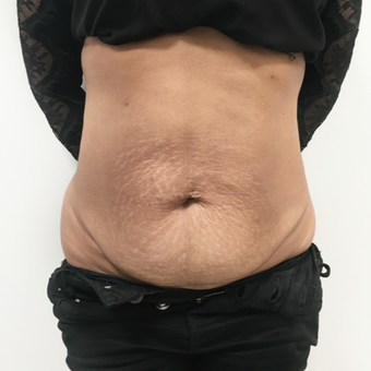 Tummy tuck before 3791329