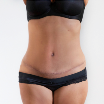 Tummy tuck after 3791329