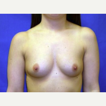 25-34 year old woman treated with Breast Augmentation before 3220095