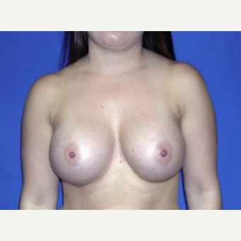 25-34 year old woman treated with Breast Augmentation after 3220095