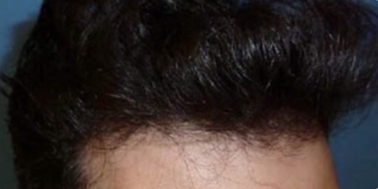 25-34 year old man treated with FUE Hair Transplant after 3745578