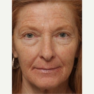 55-64 year old woman treated with Chemical Peel