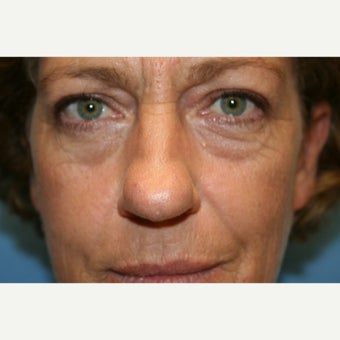 45-54 year old woman treated with Rhinoplasty before 2219944