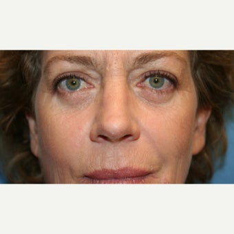 45-54 year old woman treated with Rhinoplasty after 2219944