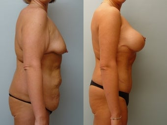 Massive Weight Loss 1 1050808