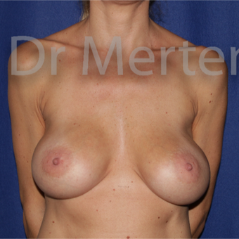 35-44 year old woman treated with Breast Lift with Implants before 3676015