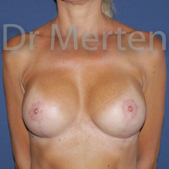 35-44 year old woman treated with Breast Lift with Implants after 3676015