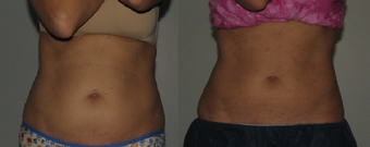 Female patient treated with CoolSculpting before 1114188