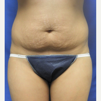 25-34 year old woman treated with Liposuction before 3071302