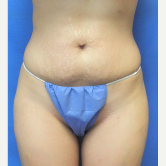 25-34 year old woman treated with Liposuction after 3071302