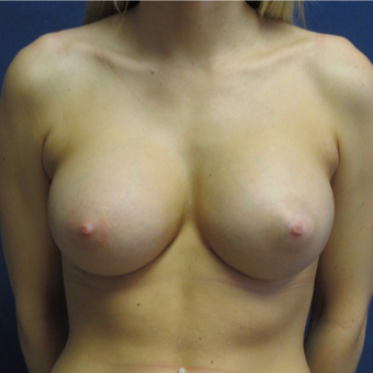 18-24 year old woman treated with Breast Augmentation after 3742978
