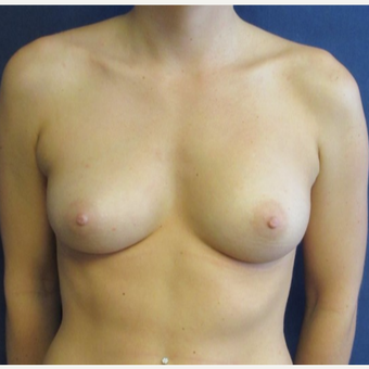 18-24 year old woman treated with Breast Augmentation before 3742978
