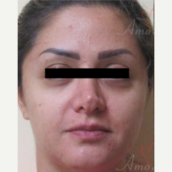 35-44 year old woman treated with Belotero before 3835929