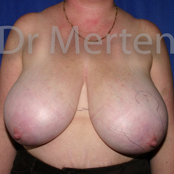 Breast Reduction before 3681190