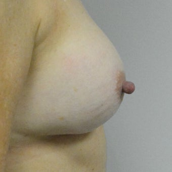 45-54 year old woman treated with Nipple reduction Surgery before 2507742