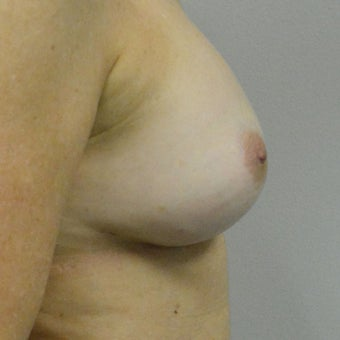 45-54 year old woman treated with Nipple reduction Surgery after 2507742