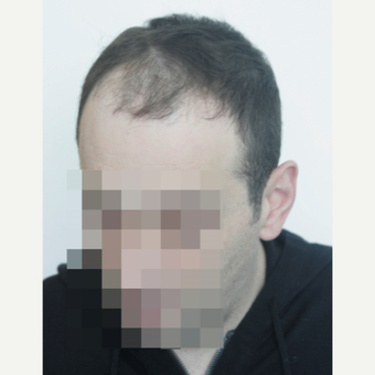 35-44 year old man treated with FUE Hair Transplant before 3145798