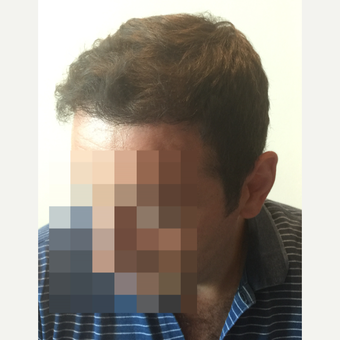 35-44 year old man treated with FUE Hair Transplant after 3145798