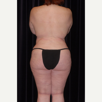45-54 year old woman treated with Butt Augmentation after 2742725