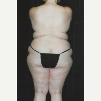 45-54 year old woman treated with Butt Augmentation before 2742725