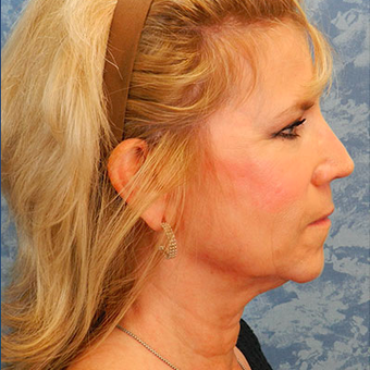Facelift before 3126429