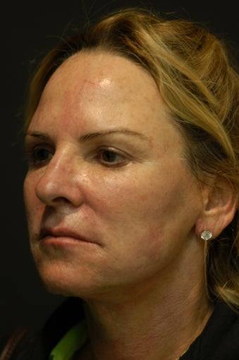 55-year-old lady whole face Ulthera 1018573