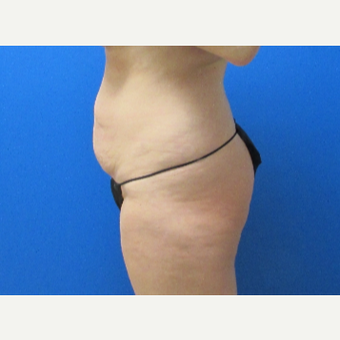 36 year old woman Tummy Tuck before 3702821