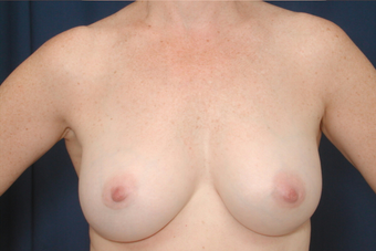 Breast Augmentation after 672707
