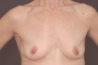 Breast Augmentation before 672707