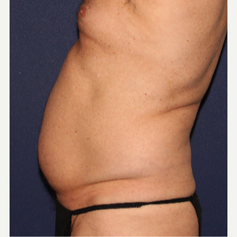 45-54 year old man treated with Liposuction before 3110354