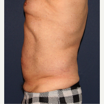 45-54 year old man treated with Liposuction after 3110354