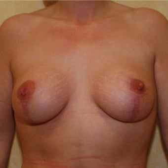 Breast Lift with Implants after 1755836