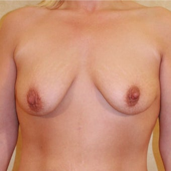 Breast Lift with Implants before 1755836