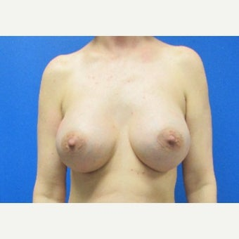 37 year old woman 450cc high profile silicone gel implants after 2658750